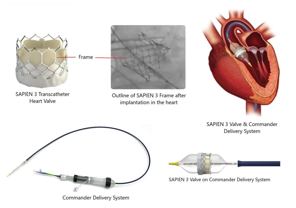 edwards lifesciences sapien 3 transcatheter heart valve frame and commander delivery system