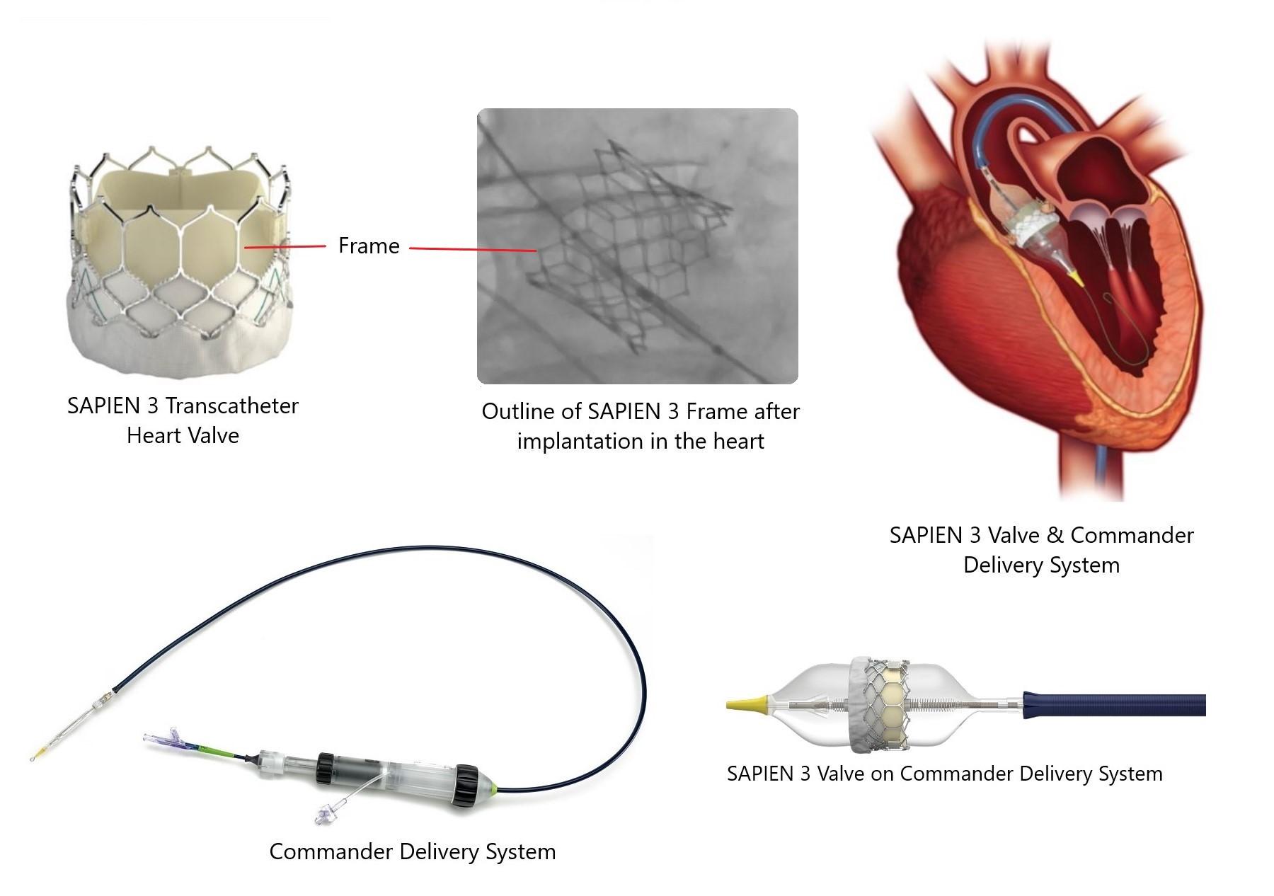 edwards lifesciences sapien 3 transcatheter heart valve frame and commander delivery system